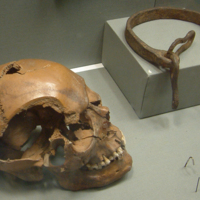 Human Skull and Slave Collar in the National Museum of Ireland